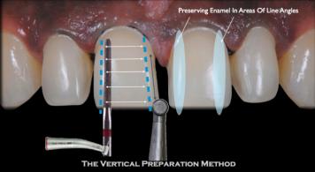 Veneers Minimal Preperation
